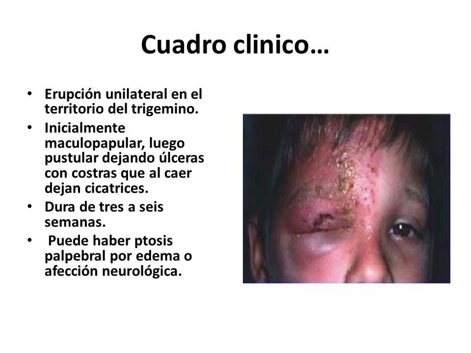 Cuadro clinico… Erupción unilateral en el territorio del trigemino.