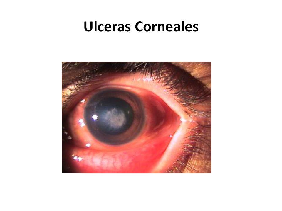Ulceras Corneales