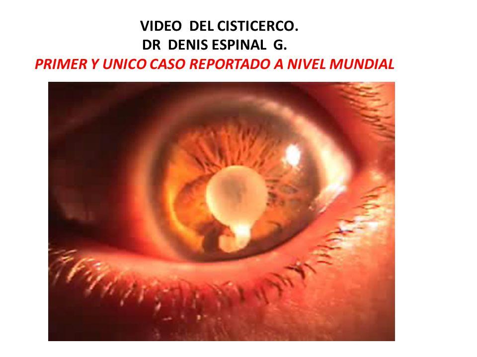 VIDEO DEL CISTICERCO. DR DENIS ESPINAL G