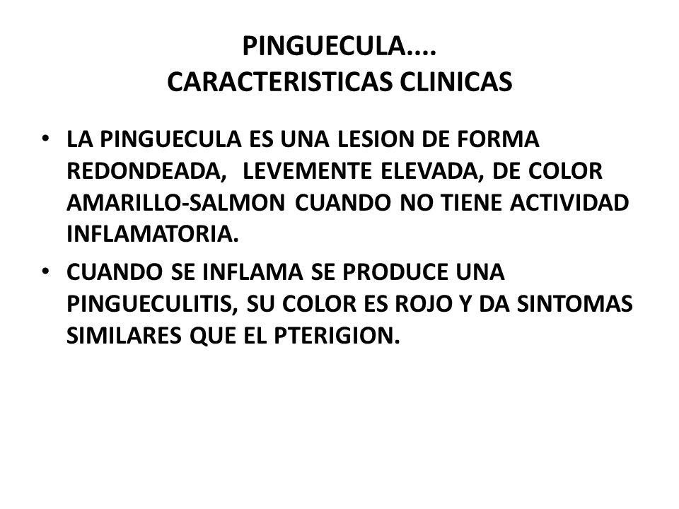 PINGUECULA.... CARACTERISTICAS CLINICAS