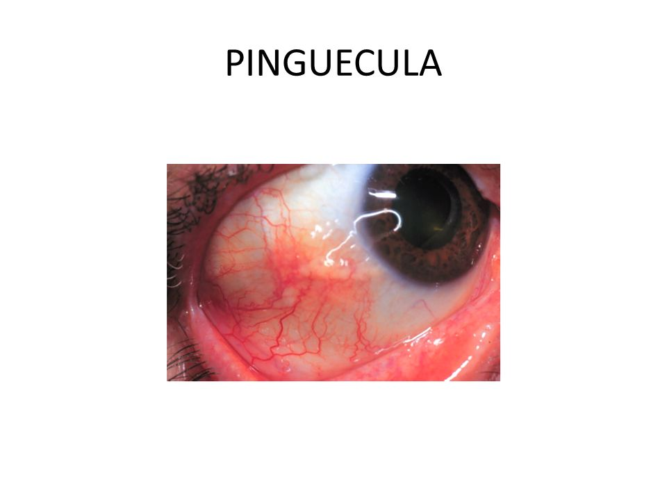 PINGUECULA