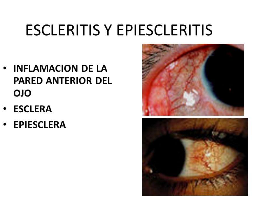 ESCLERITIS Y EPIESCLERITIS
