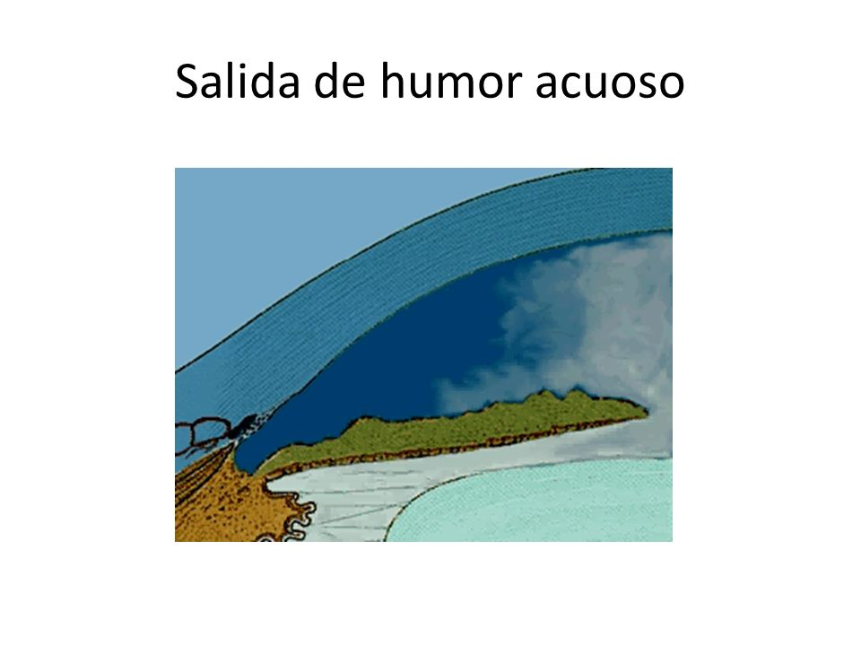Salida de humor acuoso