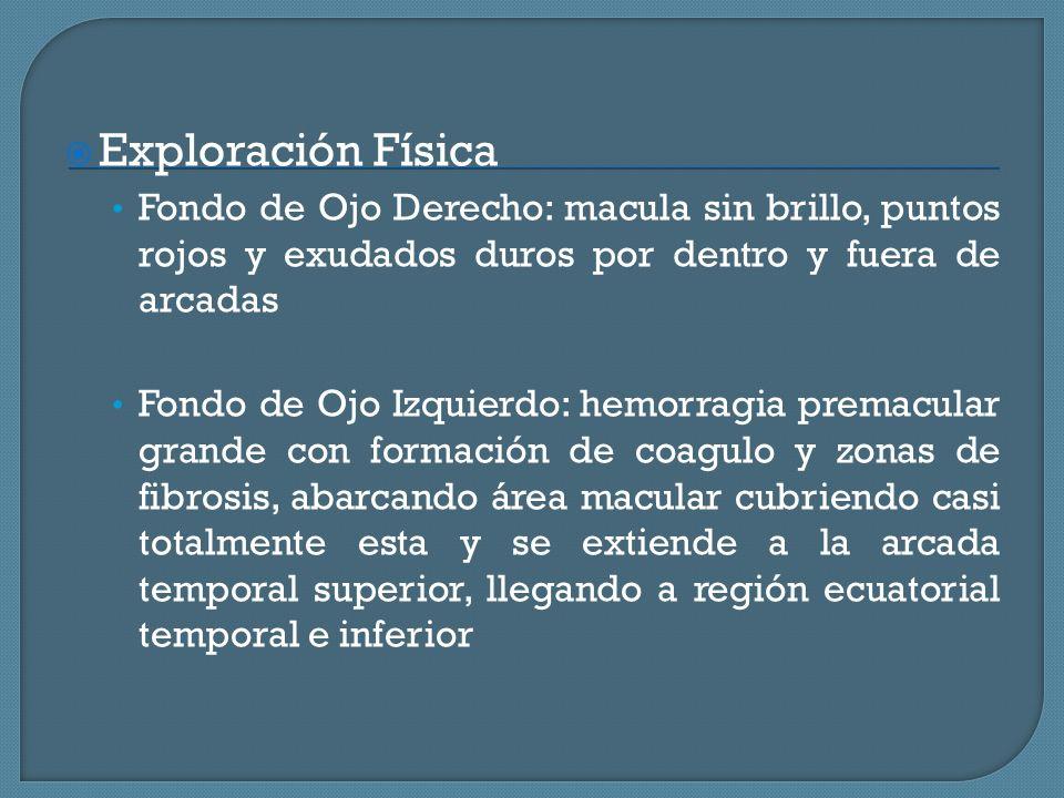 Exploración Física Fondo de Ojo Derecho: macula sin brillo, puntos rojos y exudados duros por dentro y fuera de arcadas.