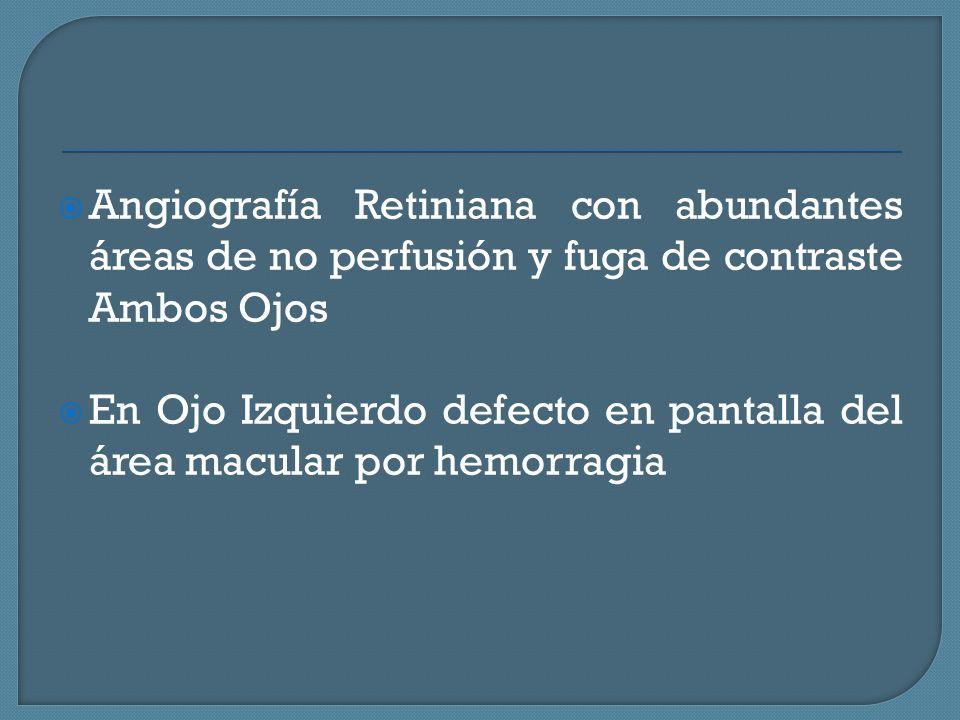 Angiografía Retiniana con abundantes áreas de no perfusión y fuga de contraste Ambos Ojos