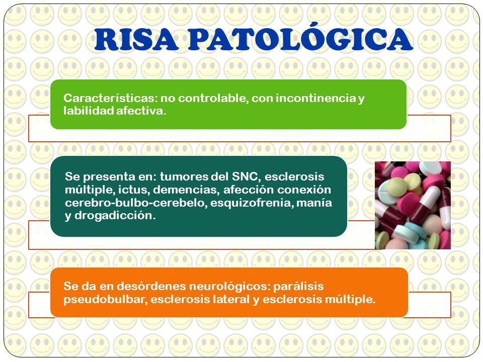 RISA PATOLÓGICA Características: no controlable, con incontinencia y labilidad afectiva.