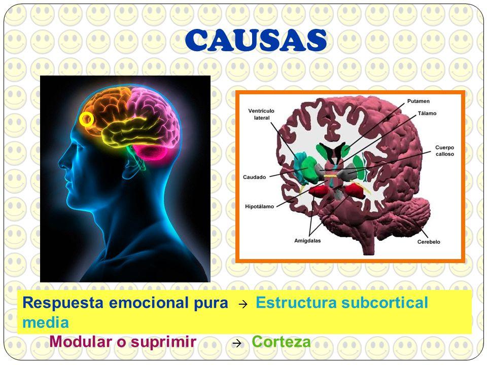 CAUSAS Respuesta emocional pura  Estructura subcortical media