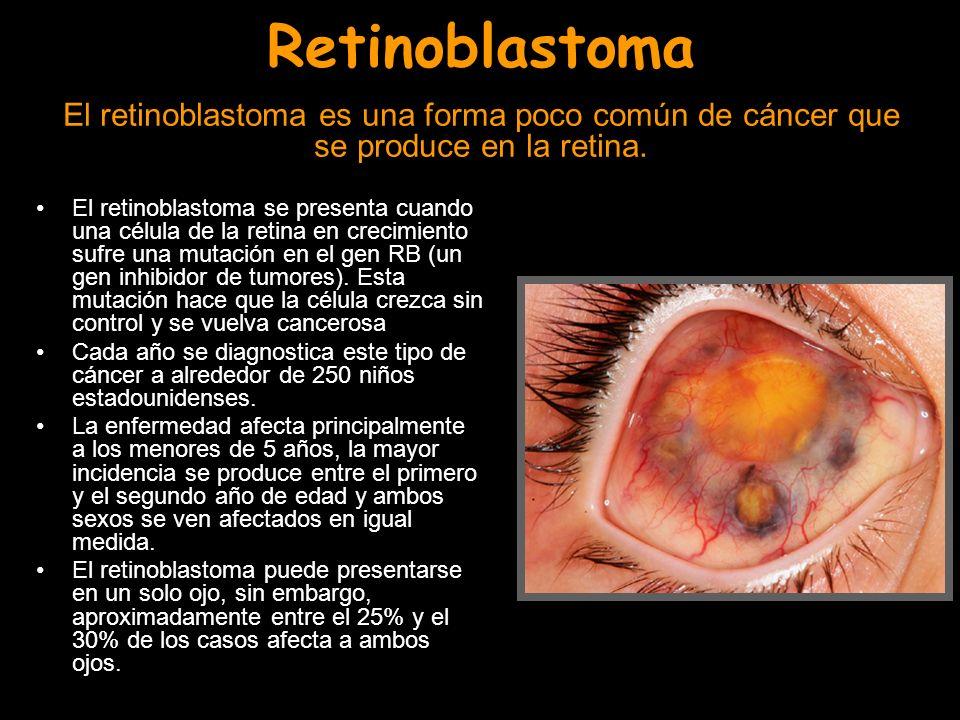 Retinoblastoma El retinoblastoma es una forma poco común de cáncer que se produce en la retina.