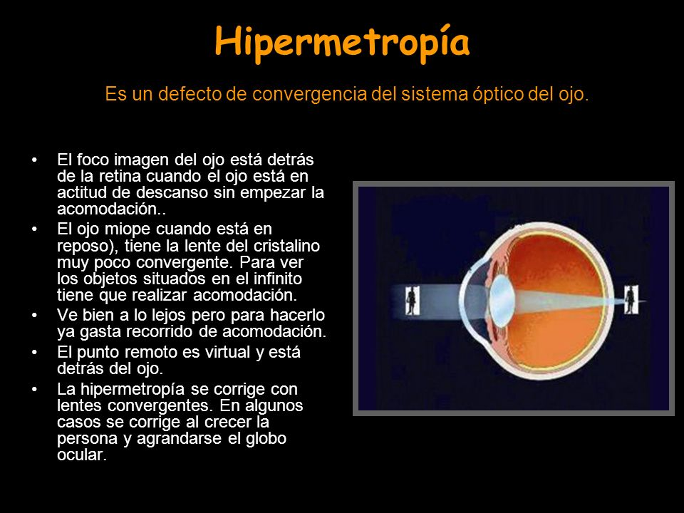 Hipermetropía Es un defecto de convergencia del sistema óptico del ojo.