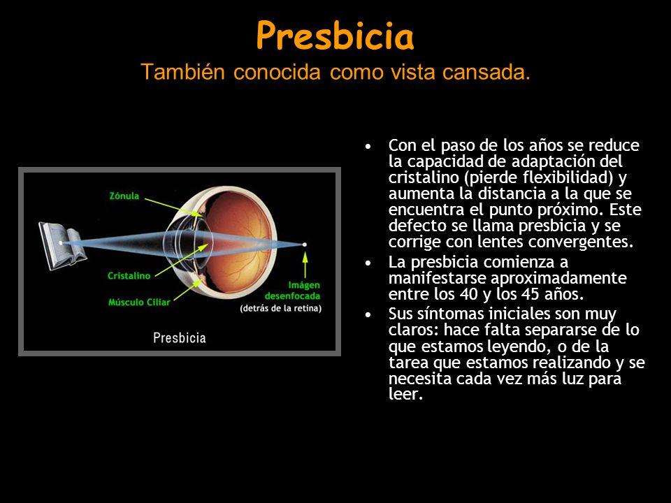 Presbicia También conocida como vista cansada.