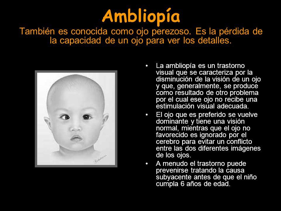 Ambliopía También es conocida como ojo perezoso