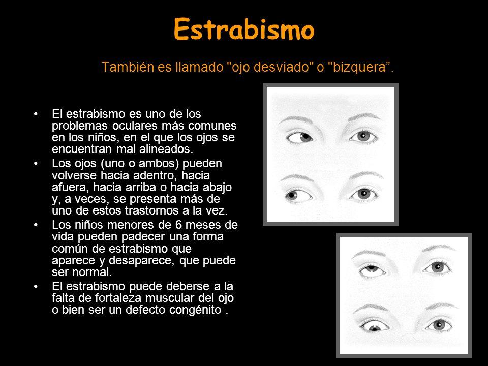 Estrabismo También es llamado ojo desviado o bizquera .