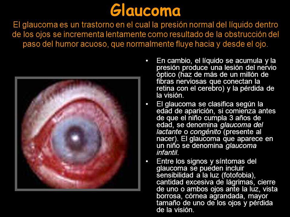 Glaucoma El glaucoma es un trastorno en el cual la presión normal del líquido dentro de los ojos se incrementa lentamente como resultado de la obstrucción del paso del humor acuoso, que normalmente fluye hacia y desde el ojo.