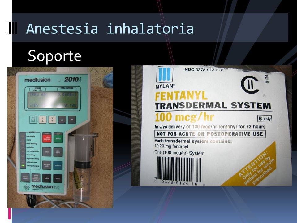 Anestesia inhalatoria