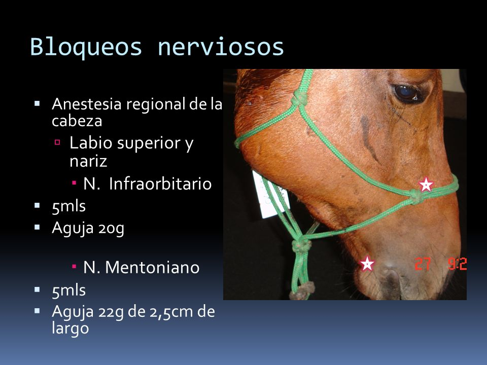 Bloqueos nerviosos Labio superior y nariz N. Infraorbitario