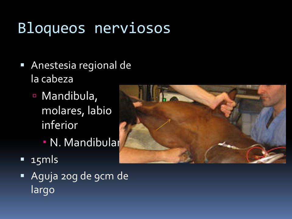 Bloqueos nerviosos Mandibula, molares, labio inferior N. Mandibular