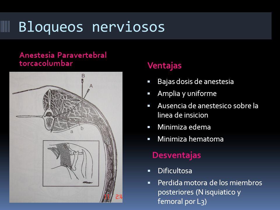 Bloqueos nerviosos Ventajas Desventajas