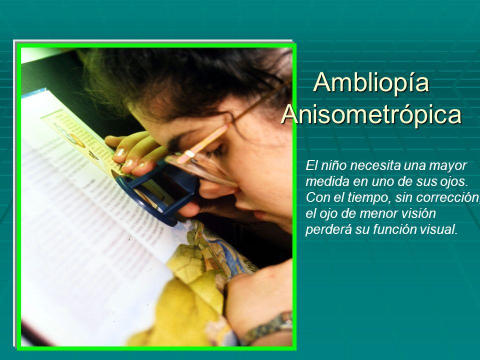 Ambliopía Anisometrópica