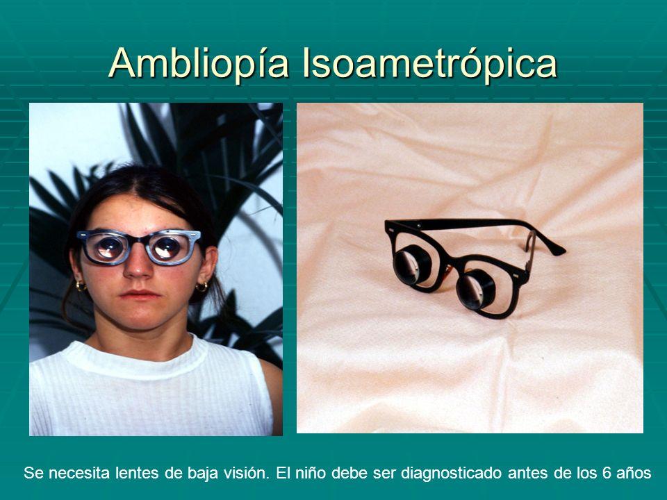Ambliopía Isoametrópica