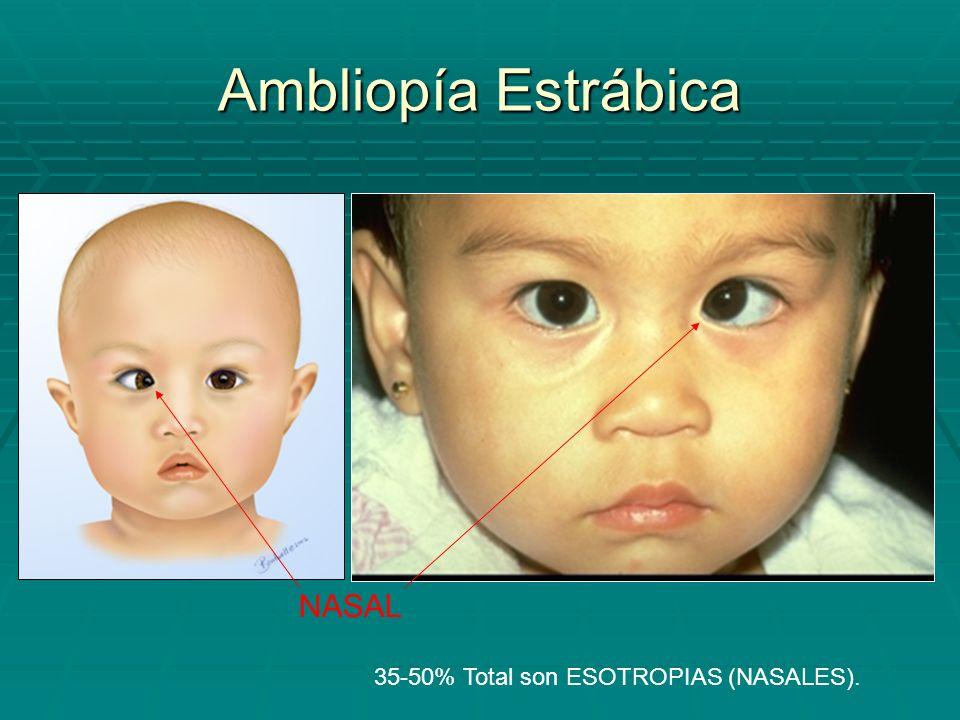 Ambliopía Estrábica NASAL 35-50% Total son ESOTROPIAS (NASALES).