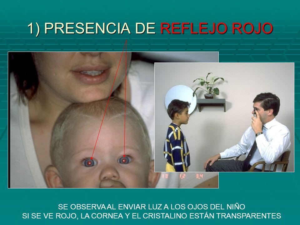 1) PRESENCIA DE REFLEJO ROJO
