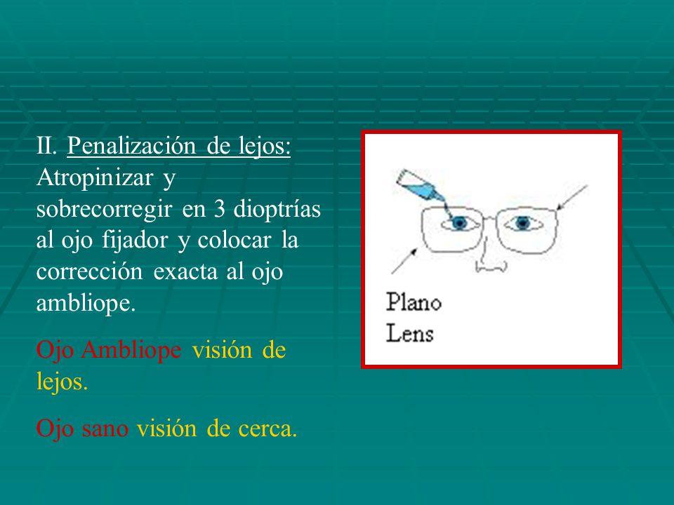 II. Penalización de lejos: Atropinizar y sobrecorregir en 3 dioptrías al ojo fijador y colocar la corrección exacta al ojo ambliope.