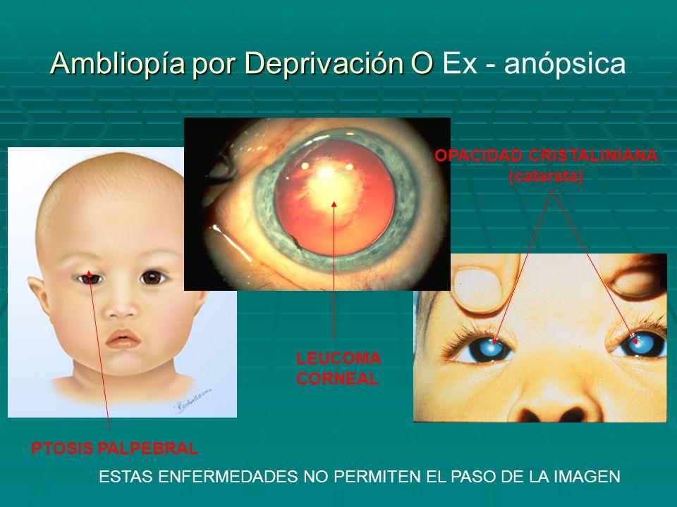 Ambliopía por Deprivación O Ex - anópsica