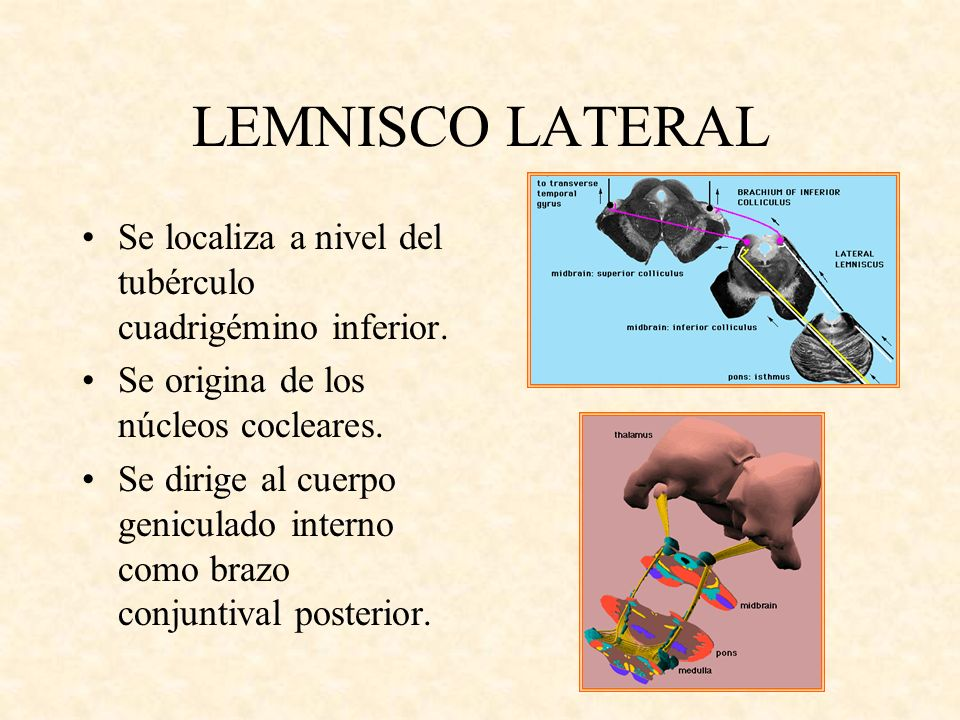 LEMNISCO LATERAL Se localiza a nivel del tubérculo cuadrigémino inferior. Se origina de los núcleos cocleares.