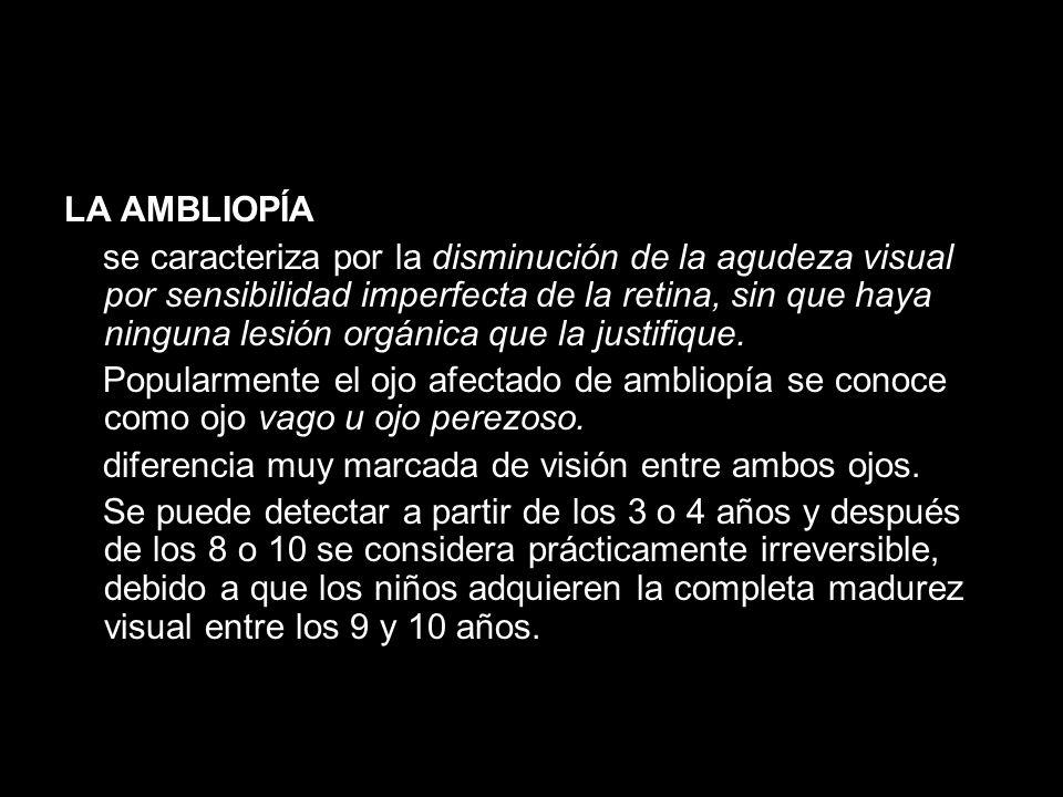 LA AMBLIOPÍA