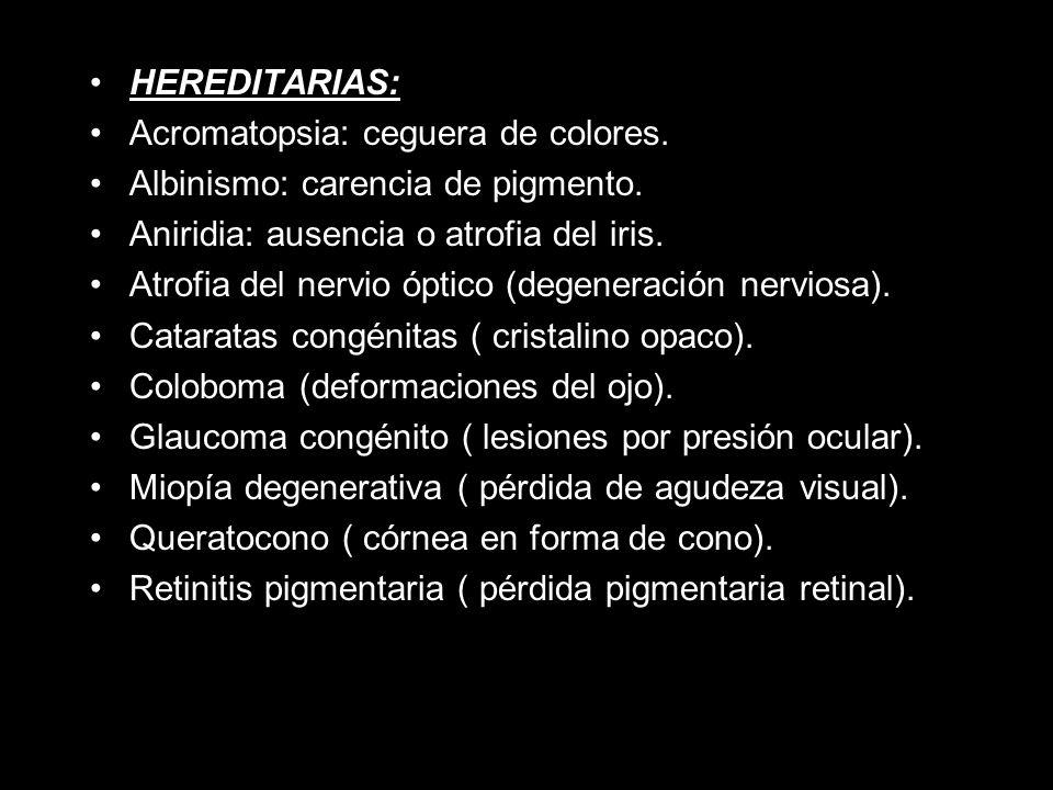 HEREDITARIAS: Acromatopsia: ceguera de colores. Albinismo: carencia de pigmento. Aniridia: ausencia o atrofia del iris.