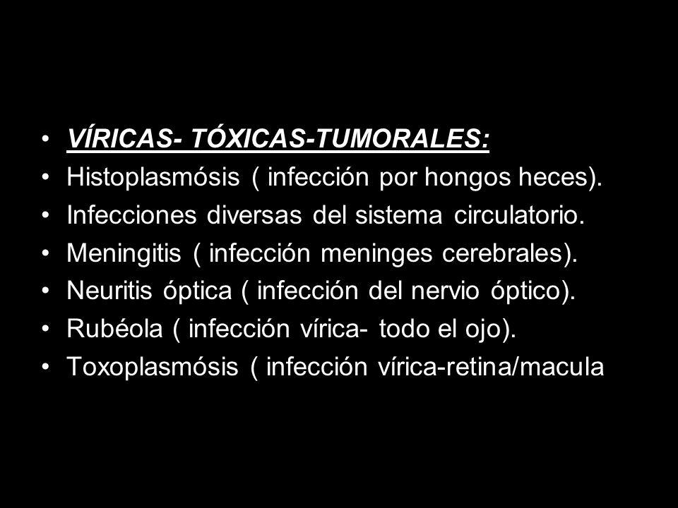 VÍRICAS- TÓXICAS-TUMORALES: