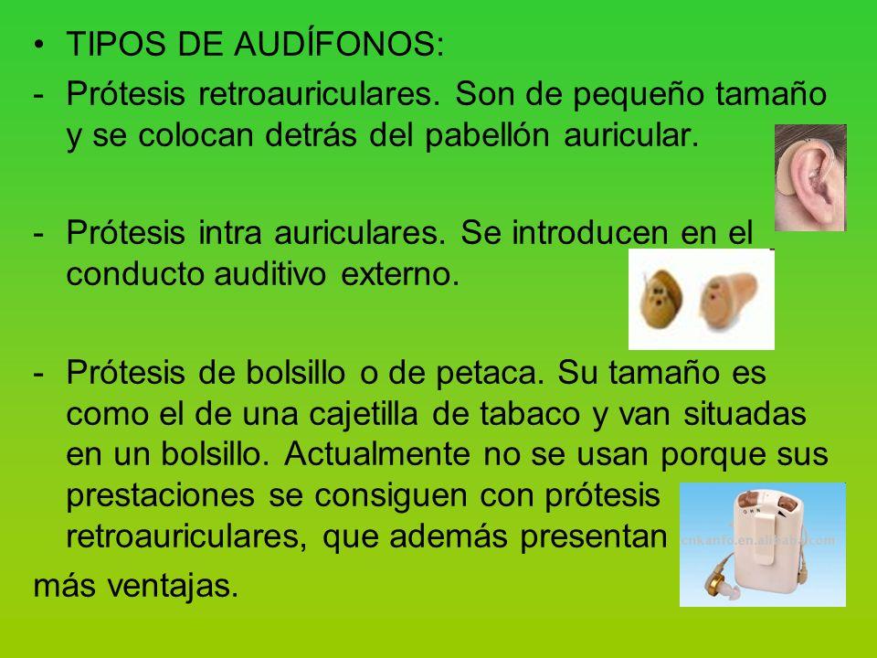 TIPOS DE AUDÍFONOS: Prótesis retroauriculares. Son de pequeño tamaño y se colocan detrás del pabellón auricular.