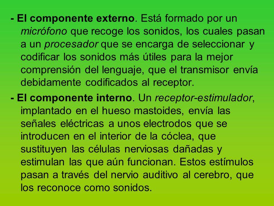 - El componente externo