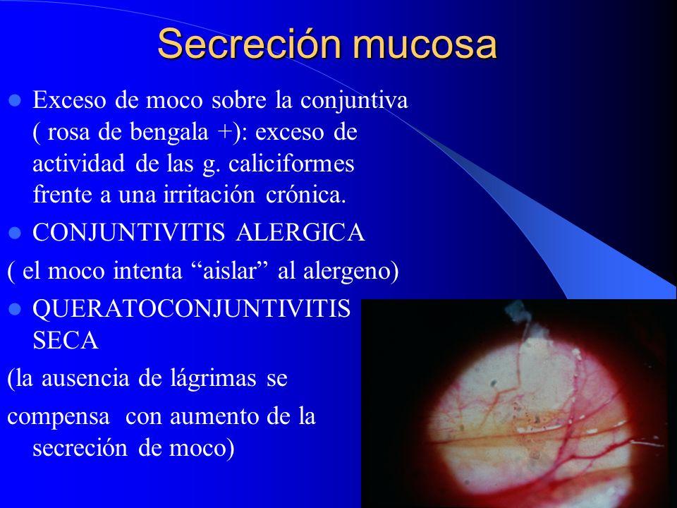 Secreción mucosa Exceso de moco sobre la conjuntiva ( rosa de bengala +): exceso de actividad de las g. caliciformes frente a una irritación crónica.