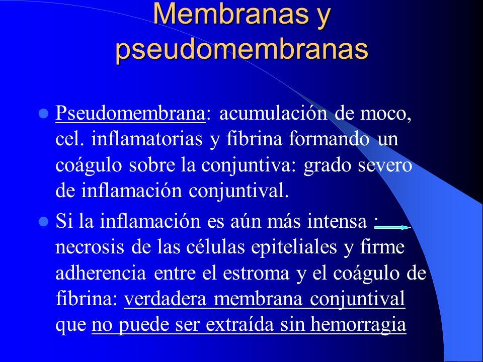 Membranas y pseudomembranas