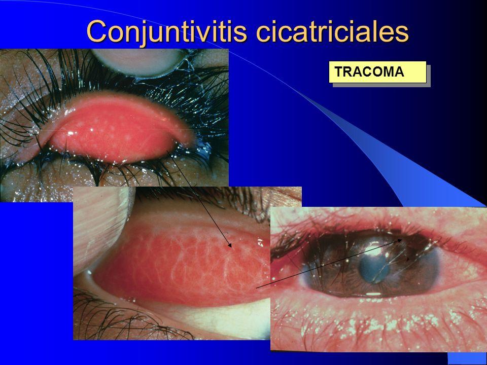 Conjuntivitis cicatriciales