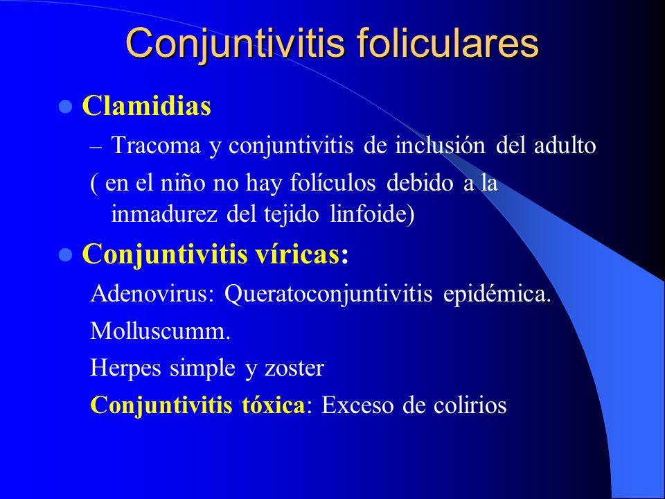 Conjuntivitis foliculares