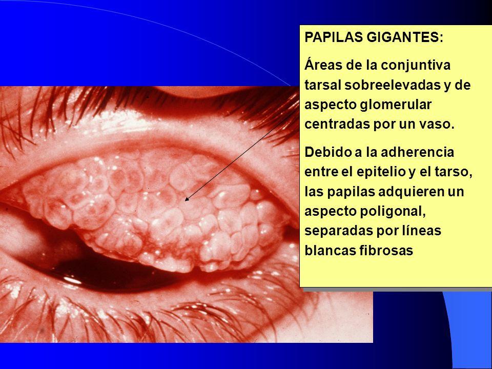 PAPILAS GIGANTES: Áreas de la conjuntiva tarsal sobreelevadas y de aspecto glomerular centradas por un vaso.