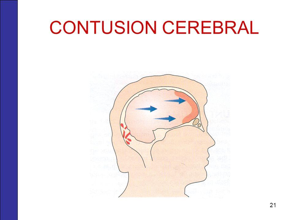 CONTUSION CEREBRAL