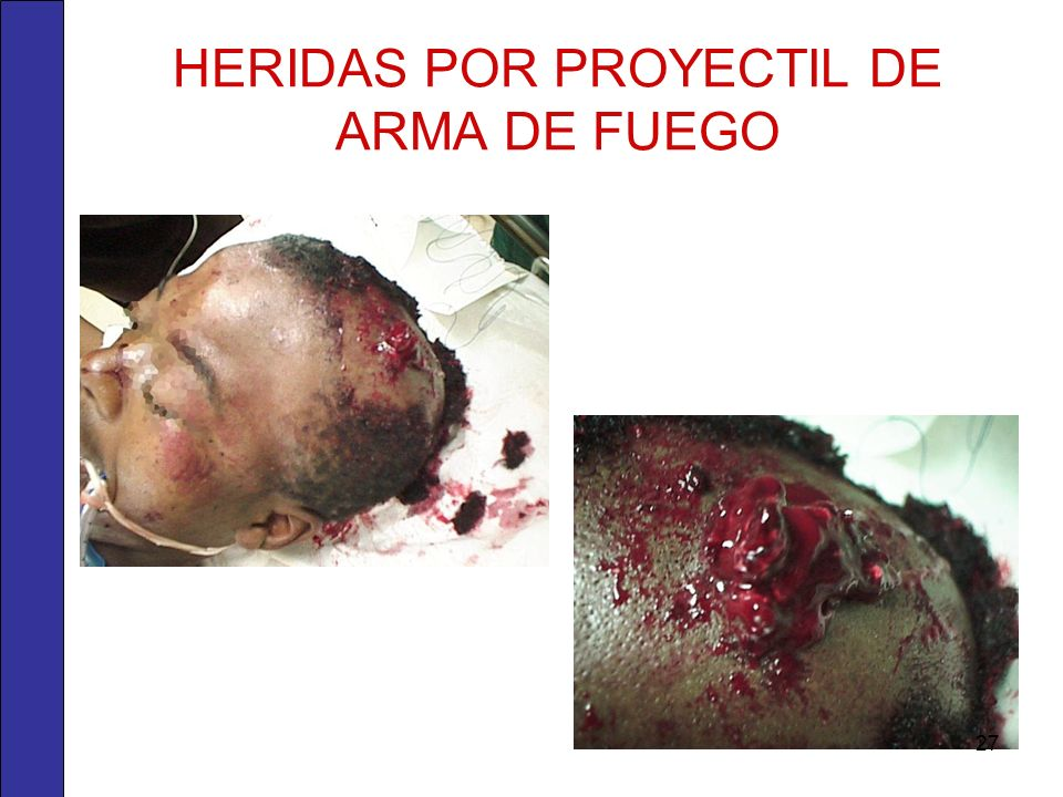 HERIDAS POR PROYECTIL DE ARMA DE FUEGO
