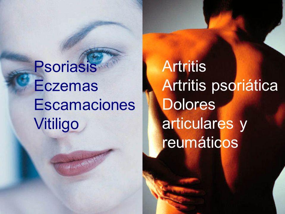 Escamaciones Vitiligo Artritis Artritis psoriática
