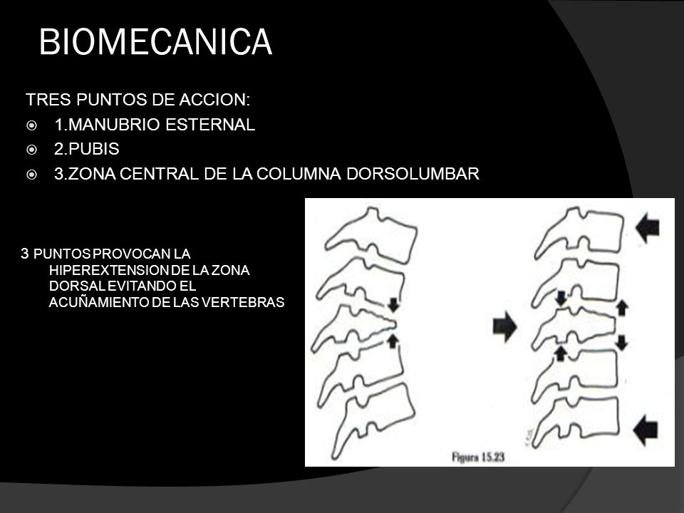 BIOMECANICA TRES PUNTOS DE ACCION: 1.MANUBRIO ESTERNAL 2.PUBIS