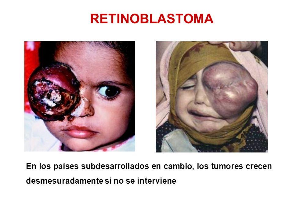 RETINOBLASTOMA En los países subdesarrollados en cambio, los tumores crecen desmesuradamente si no se interviene.