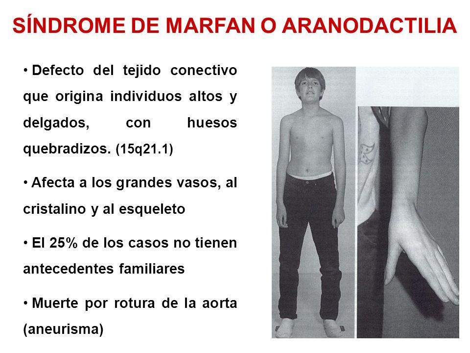 SÍNDROME DE MARFAN O ARANODACTILIA