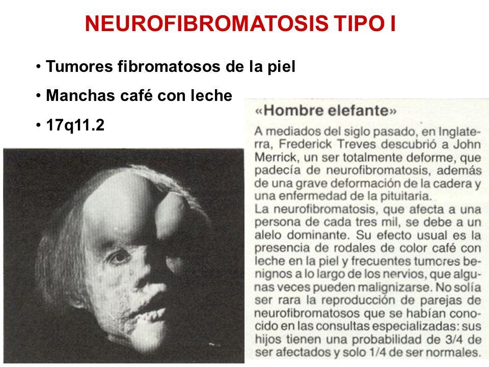 NEUROFIBROMATOSIS TIPO I