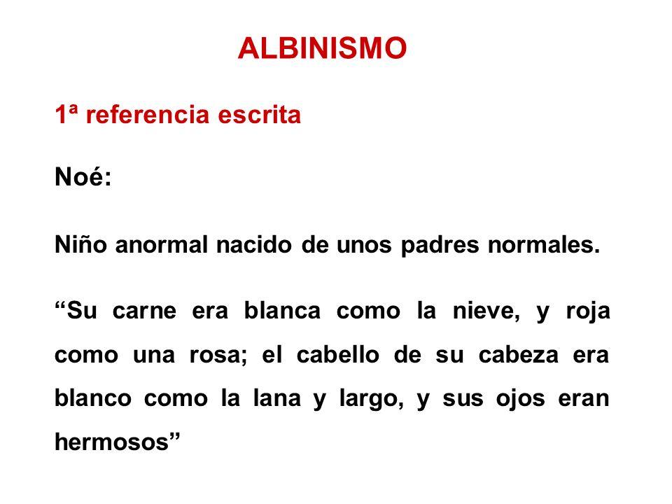 ALBINISMO 1ª referencia escrita Noé: