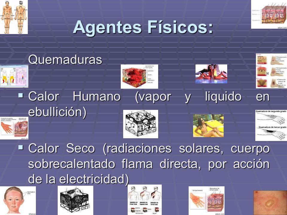 Agentes Físicos: Quemaduras