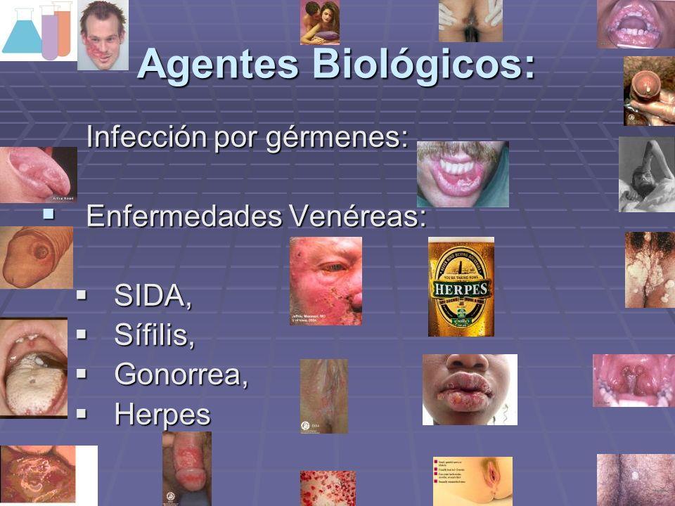 Agentes Biológicos: Infección por gérmenes: Enfermedades Venéreas: