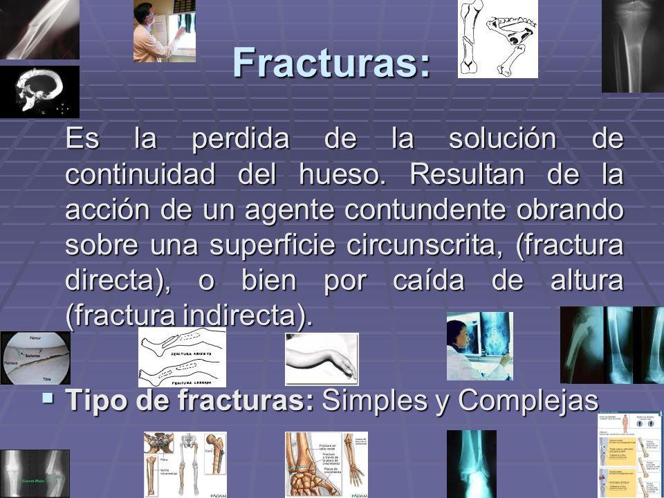 Fracturas: