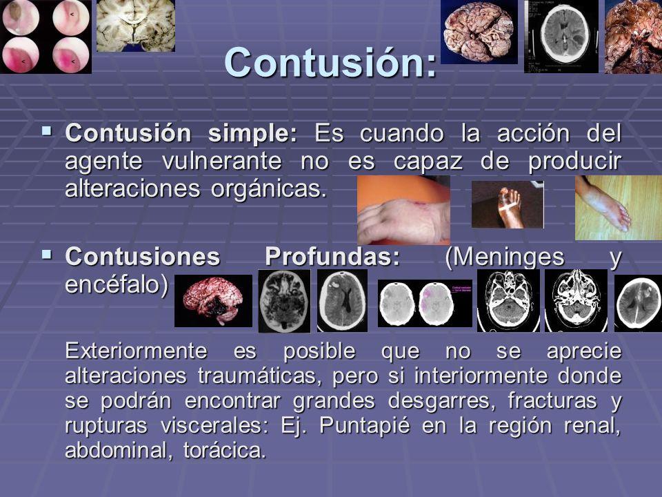 Contusión: Contusión simple: Es cuando la acción del agente vulnerante no es capaz de producir alteraciones orgánicas.